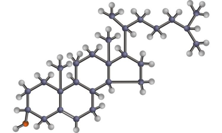Химическая структура холестерина, есть хороший - высокой плотности и плохой - низкой плотности